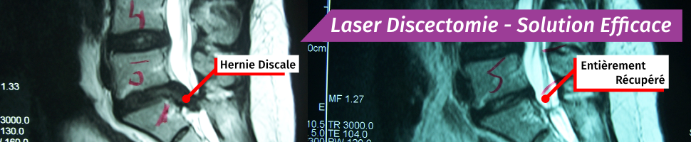 Laser Discectomie - Solution Efficace