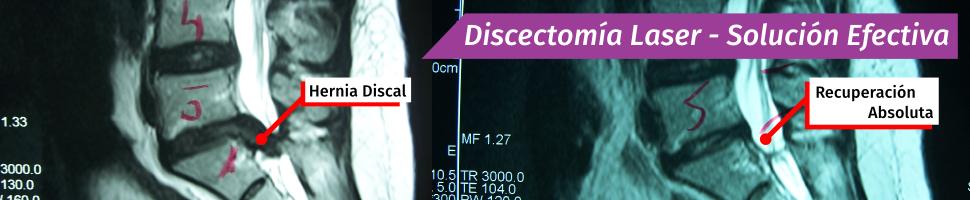 Discectomía Laser - Solución Efectiva